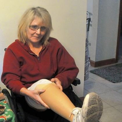 Catherine Fielding, a double amputee, puts on her prosthetic leg in her Richland home.